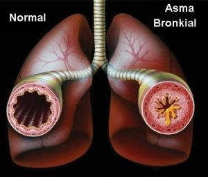 Sebagai Alternatif Terapi Pengobatan Gangguan Pernafasan